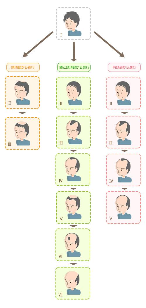 男性の薄毛の進行タイプ