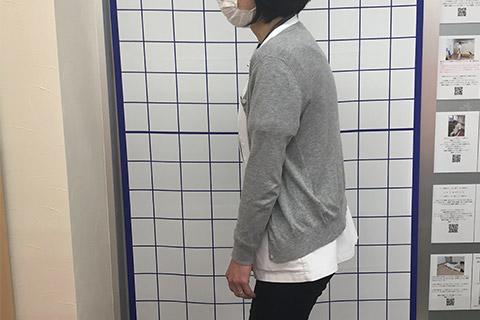 丸背型猫背